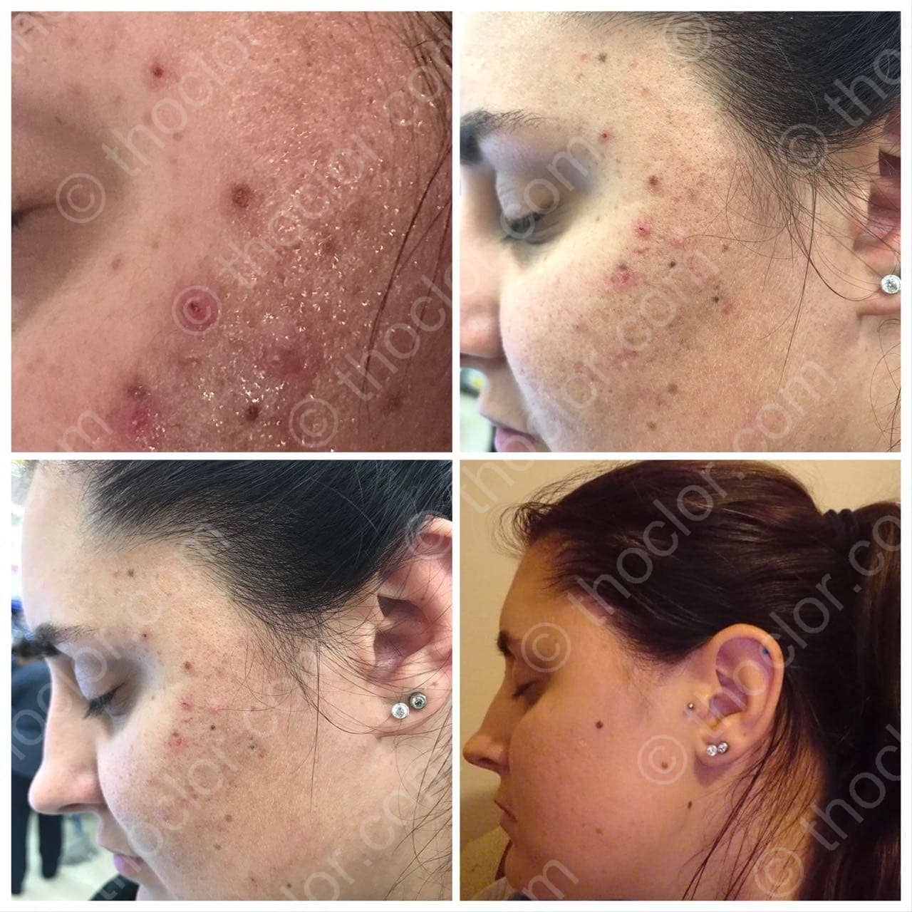 Acne is quickly improved with GF2 from Thoclor Labs