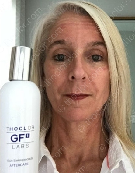 GF1 Aftercare reduces redness and speeds healing after invasive treatments