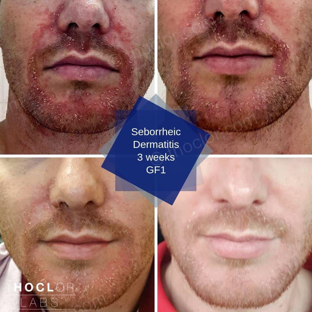 Seborrheic Dermatitis GF1