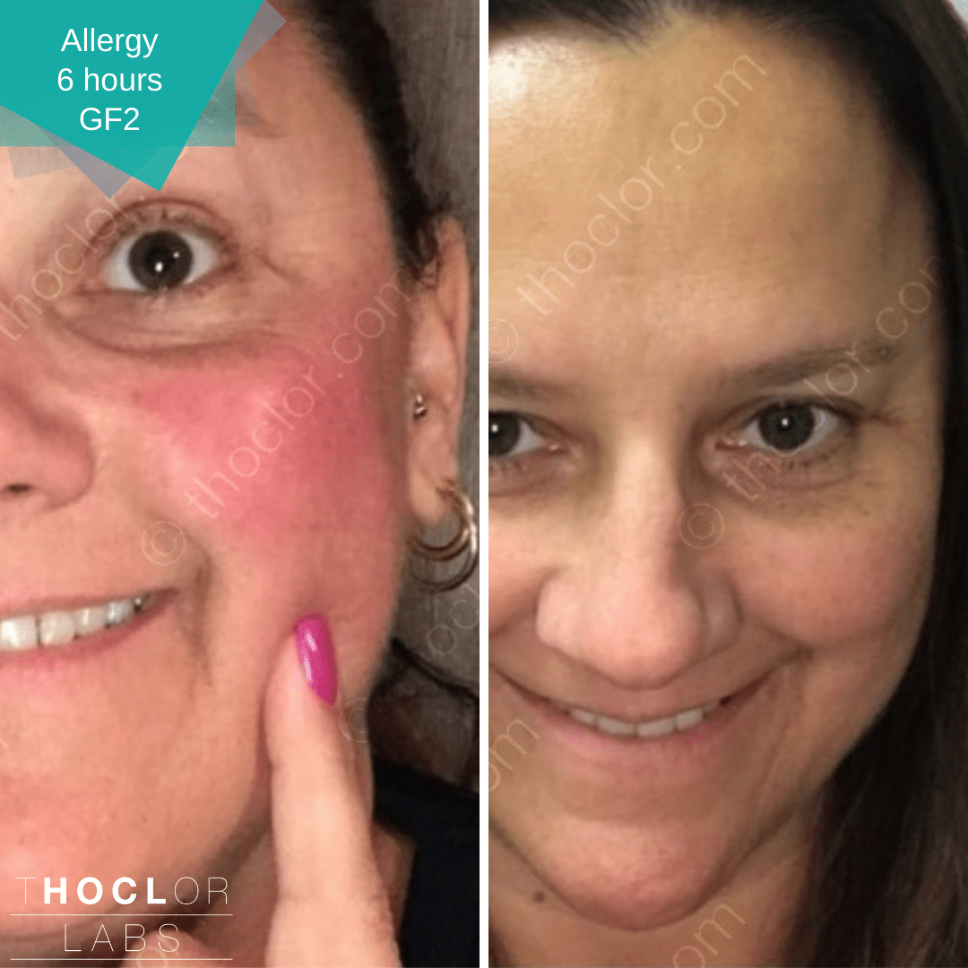 allergy recovery with GF2 from Thoclor Labs