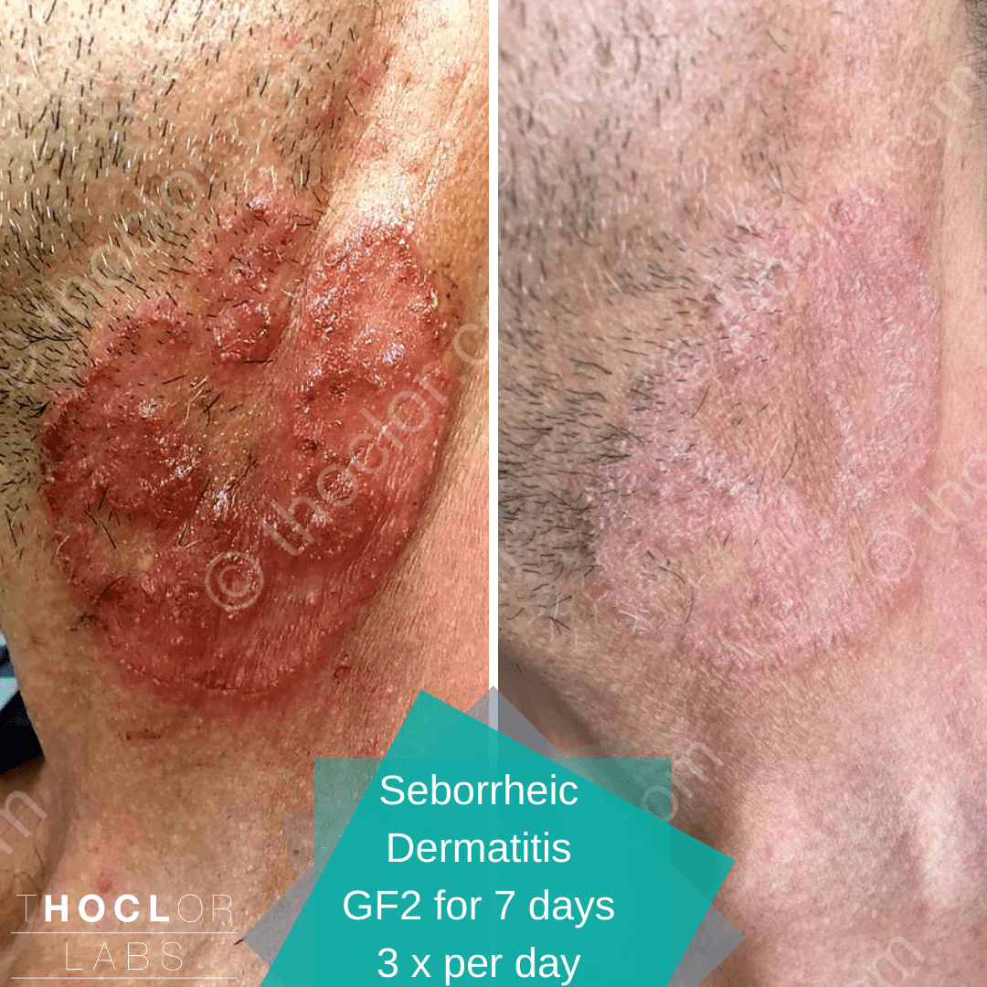 Seborrheic Dermatitis calmed with GF2