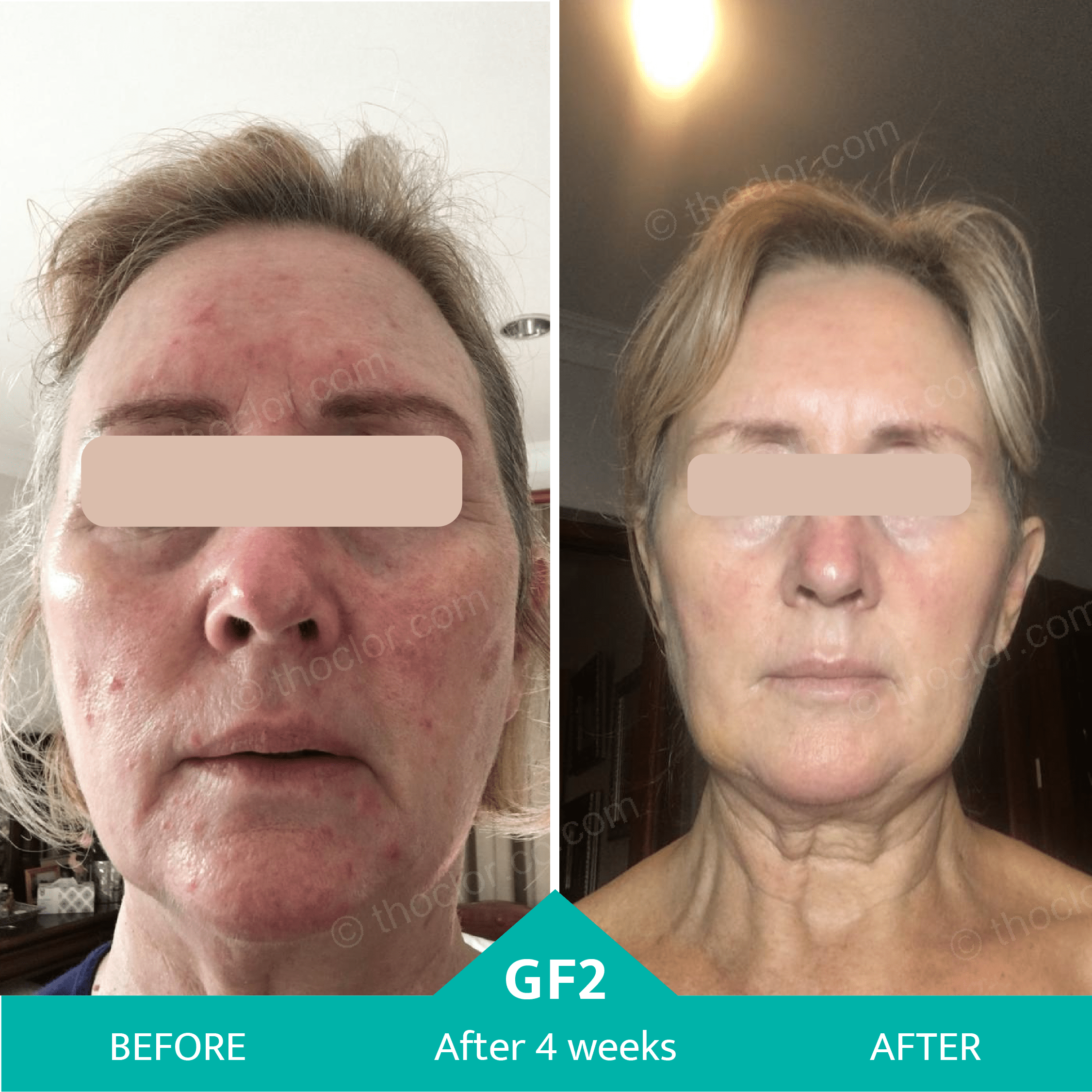 rosacea inflammation reduced with GF2