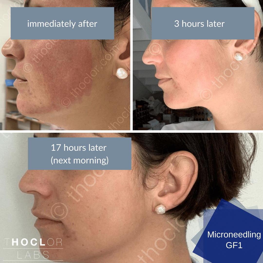 micro needling recovery with GF1 Aftercare